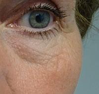 Hifu behandeling ogen na