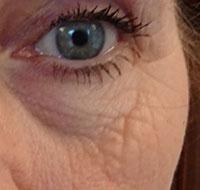 Hifu behandeling ogen voor